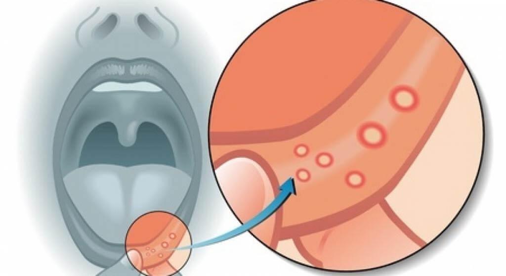 Герпес на внутренней стороне губы — 4 стадии развития и правильные методы лечения
