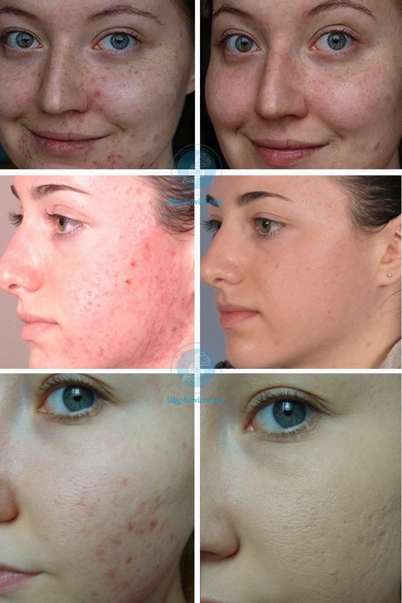 Атравматическая чистка лица: суть метода, особенности этапов, эффективность, отзывы, фото до и после