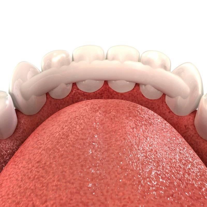 Шинирование зубов при пародонтите и пародонтозе