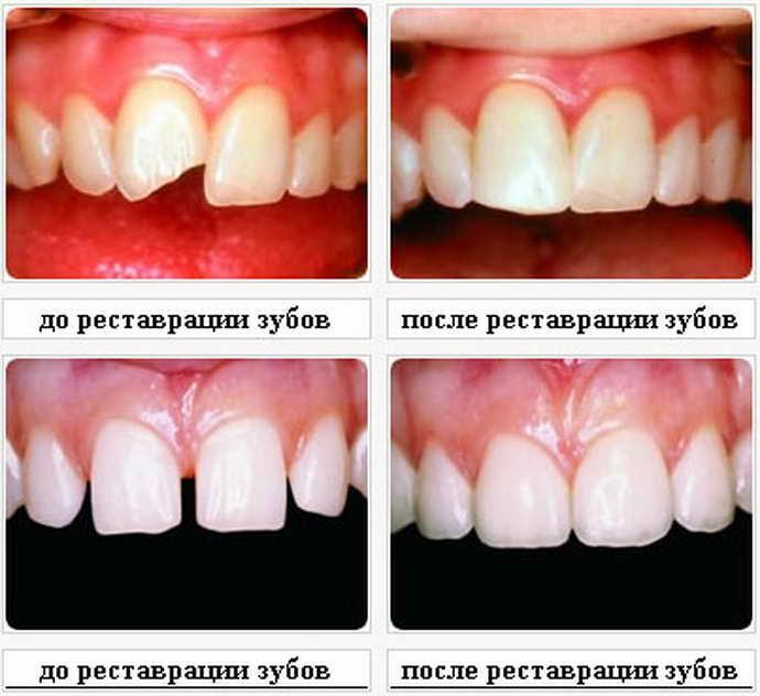 Как наращивают зуб с помощью штифта