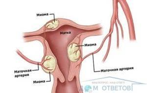 Размеры миомы матки, при которых показана операция