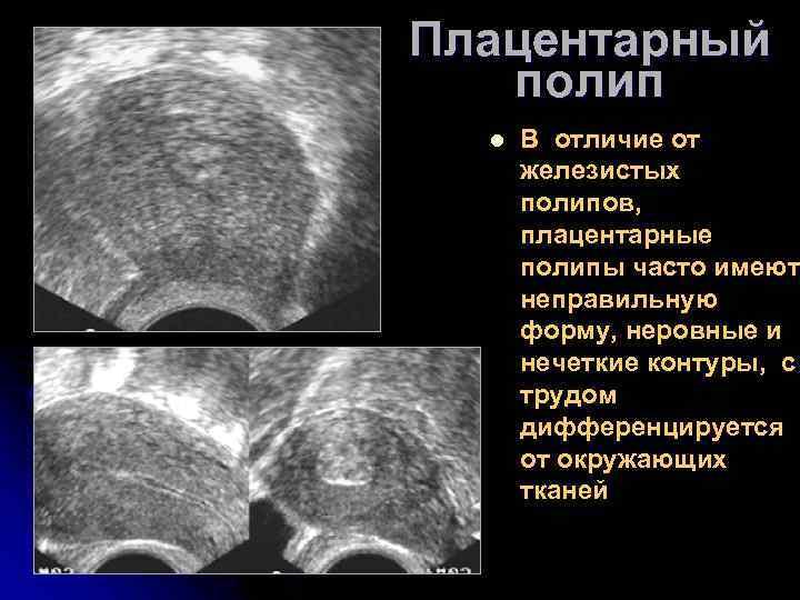 Плацентарный полип после родов: симптомы и удаление