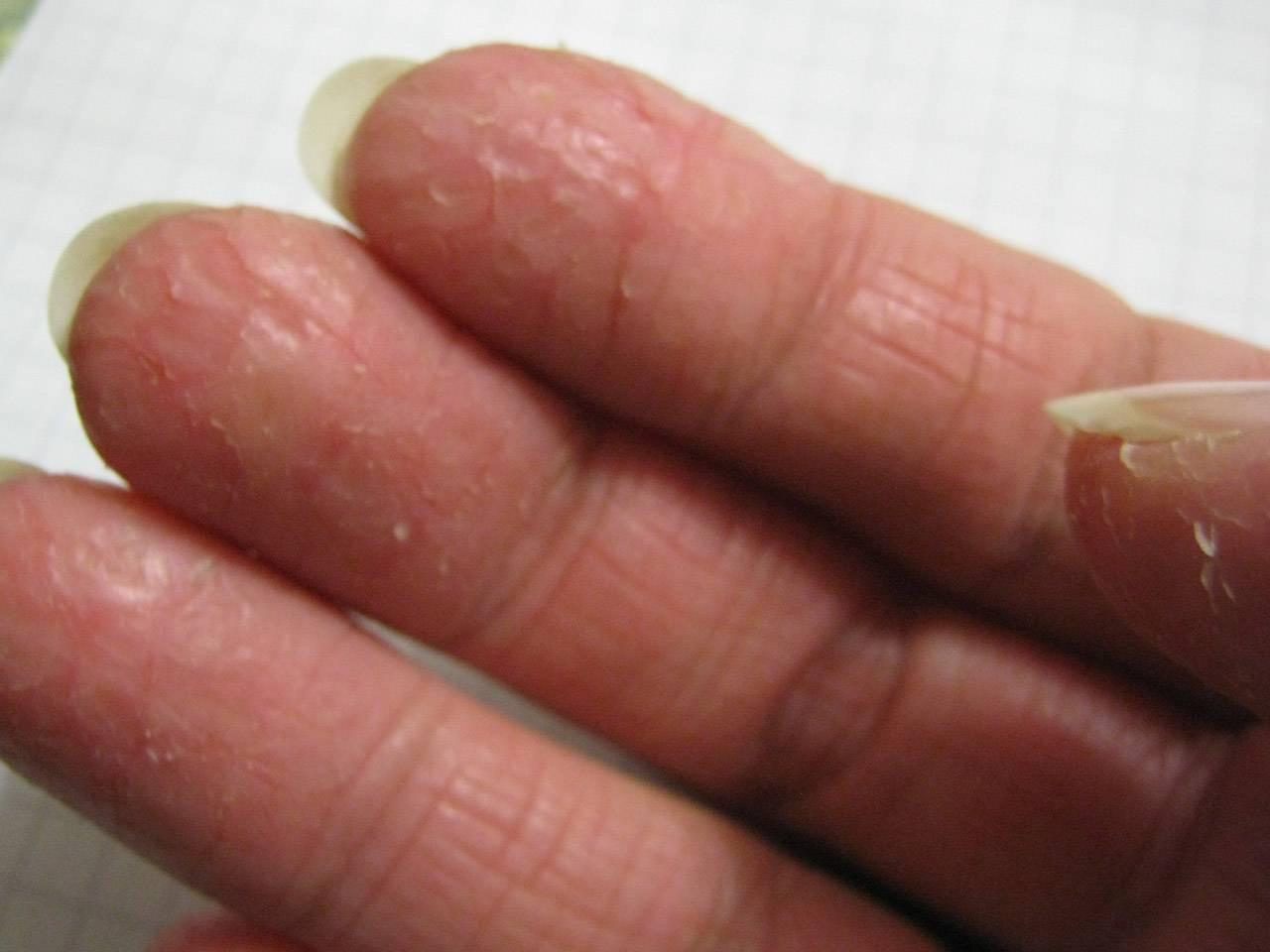 Лечебные кремы и мази от трещин и сухости рук. как правильно подобрать средство?