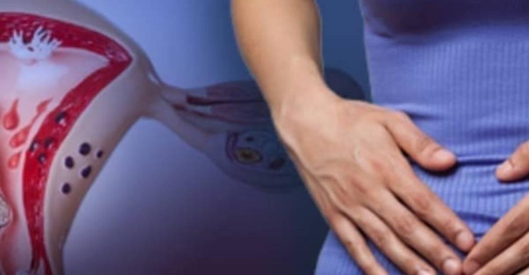Как уменьшить боль при эндометриозе.
