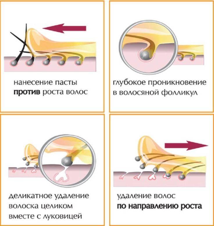 Удаление волос на ногах на время и навсегда