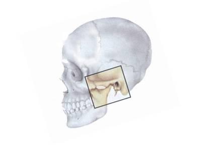 Анкилоз височно-нижнечелюстного сустава: симптомы и лечение