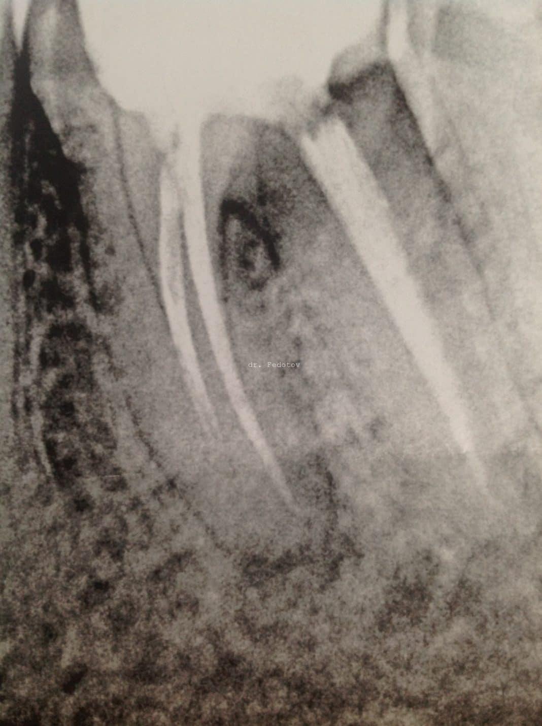 Перелом корня и коронки зуба: причины, симптомы, лечение