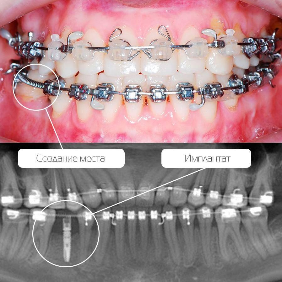 Дорого, но эффективно: в каких случаях лучше ставить брекеты на 2 челюсти одновременно?