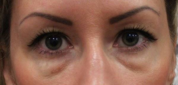 Как убрать грыжи под глазами без операции в салоне или самостоятельно