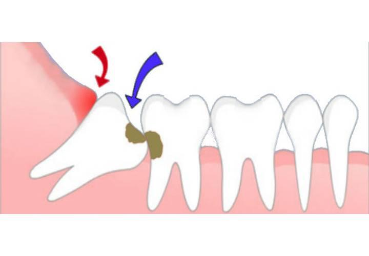 Зуб мудрости болит что делать?