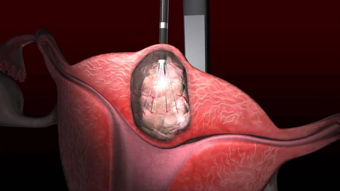 Опасные последствия миомы матки