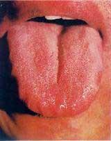 Отпечатки зубов на языке