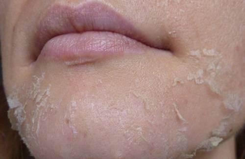 Периоральный дерматит — особенности, причины и лечение высыпаний на лице