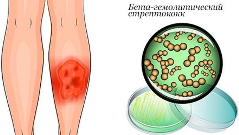 Чем опасно рожистое воспаление лица и как от него быстро и эффективно избавиться?