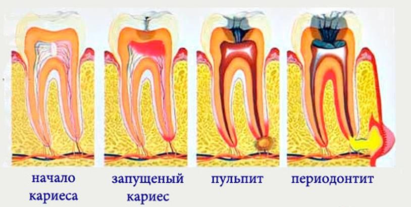 Болит зуб после лечения кариеса: что делать