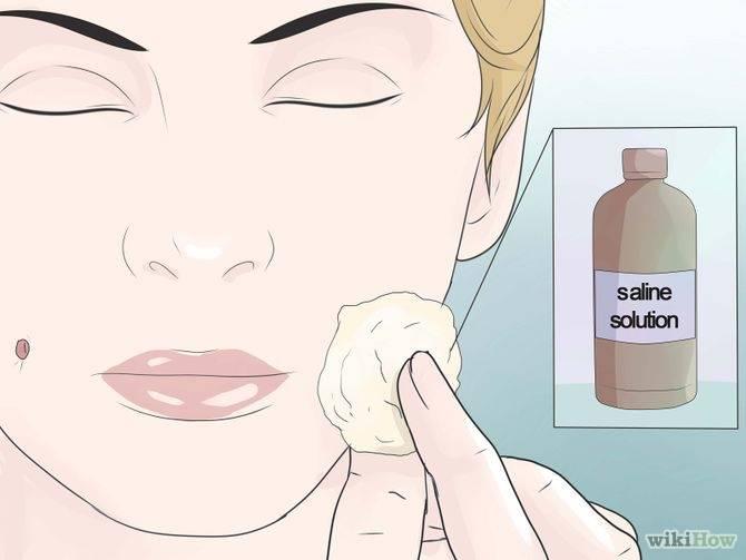 Как сделать ямочки на щеках
