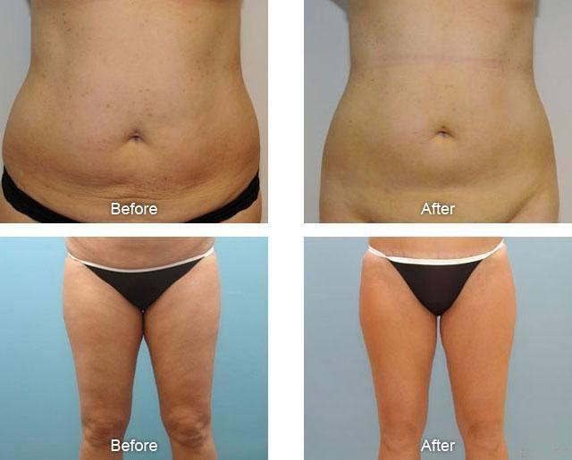 Липолиз – современная методика избавления от целлюлита и лишнего веса