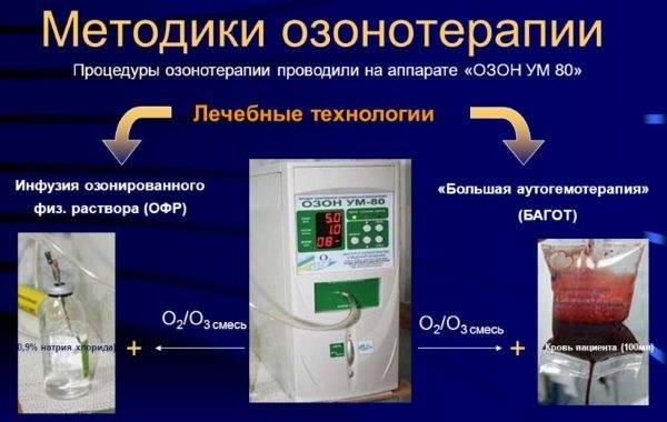 Аутогемотерапия — показания и противопоказания. схема проведения от прыщей с озоном, глюконатом кальция. как правильно делать на дому