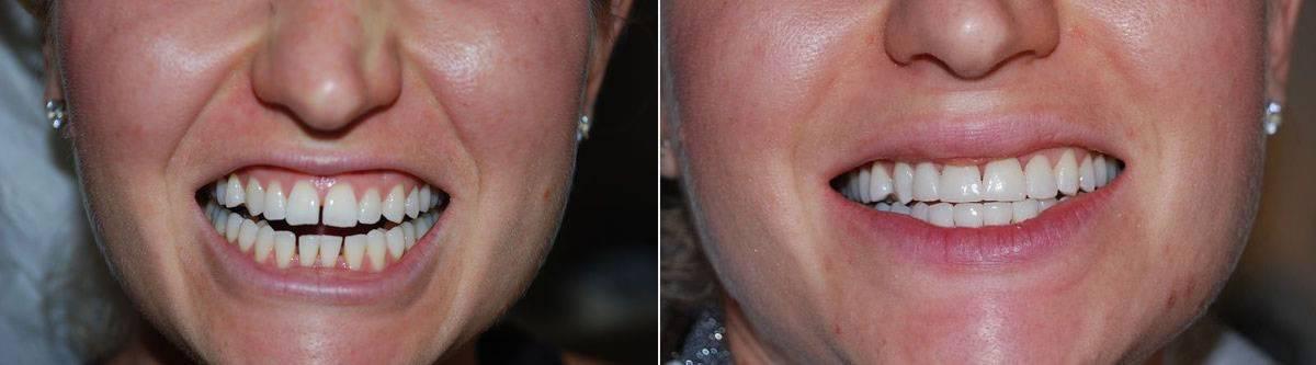 Как подточить зуб в домашних условиях