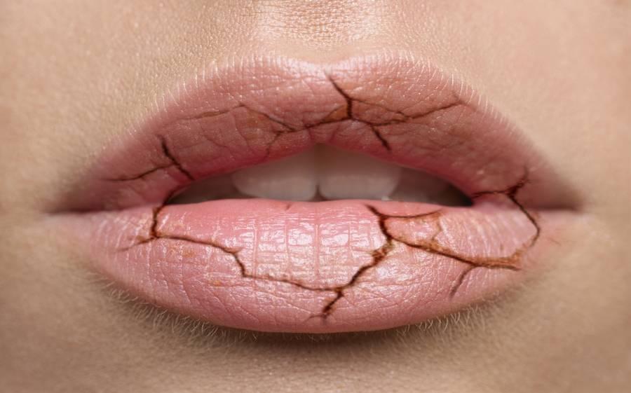 Почему губы трескаются, сохнут и шелушатся – причины и лечение сухой кожи у женщин и мужчин