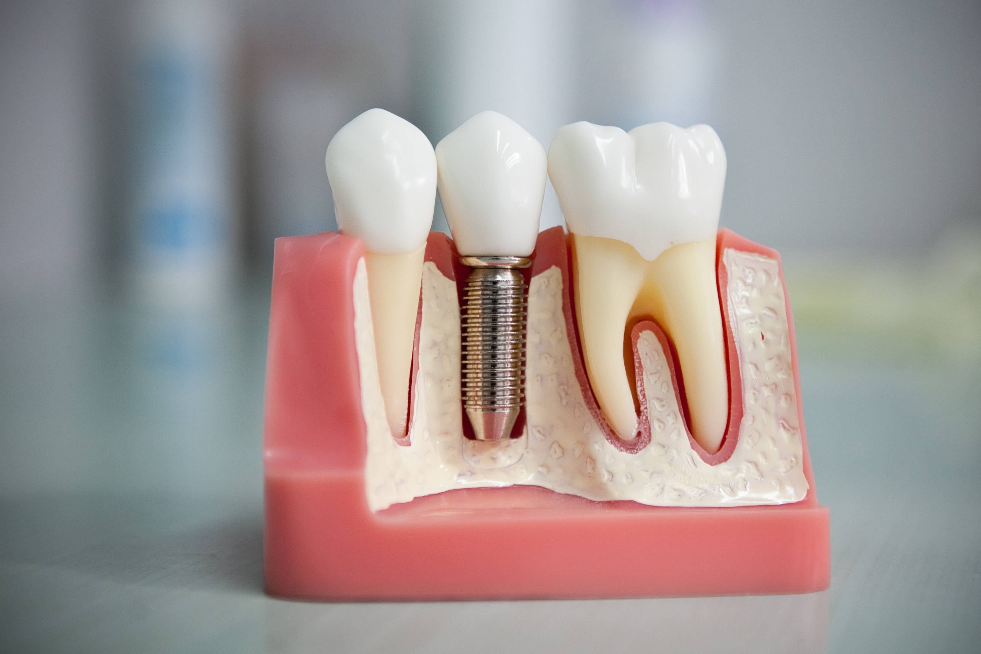 Протезирование зубов: виды и цены