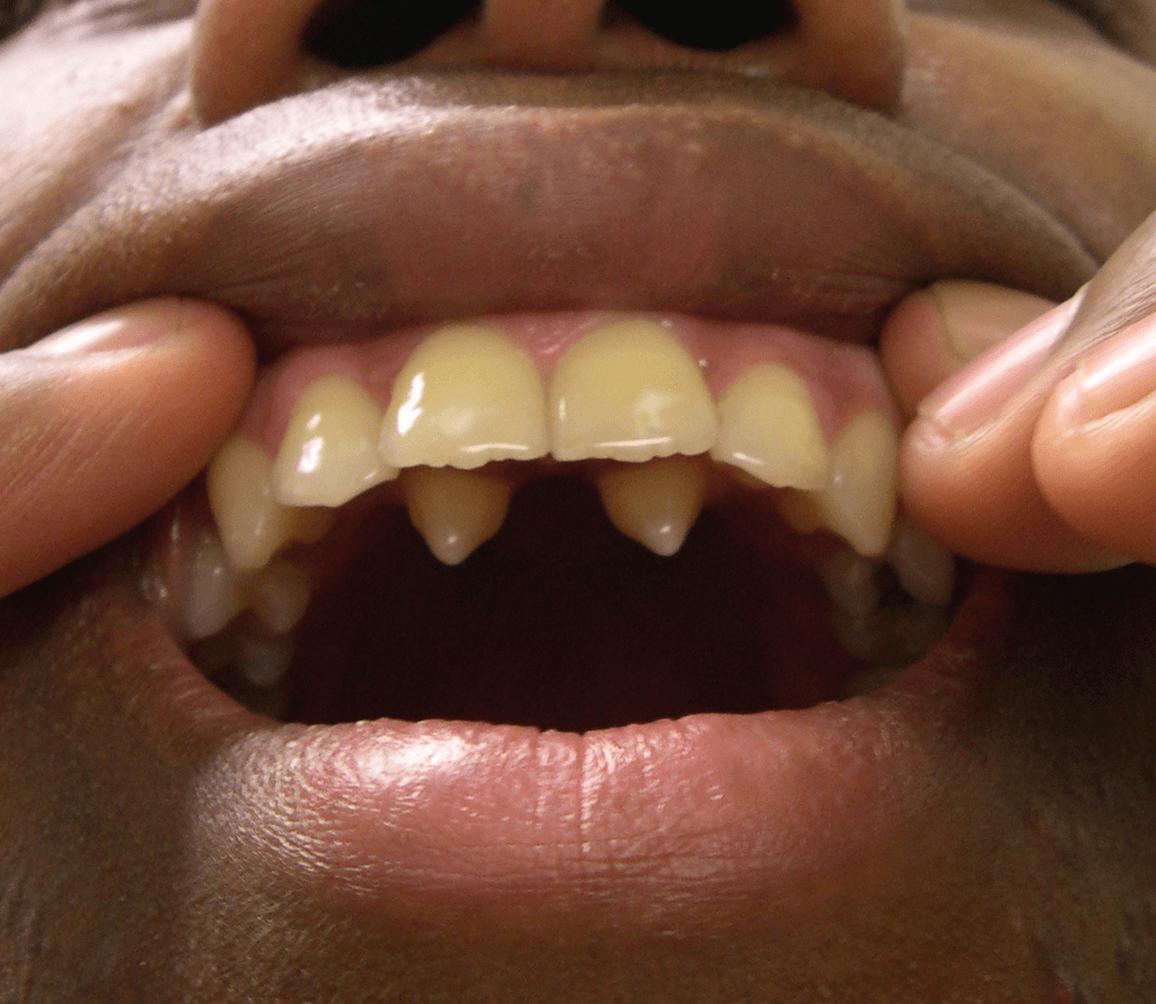 Симптомы и лечение гипердонтии