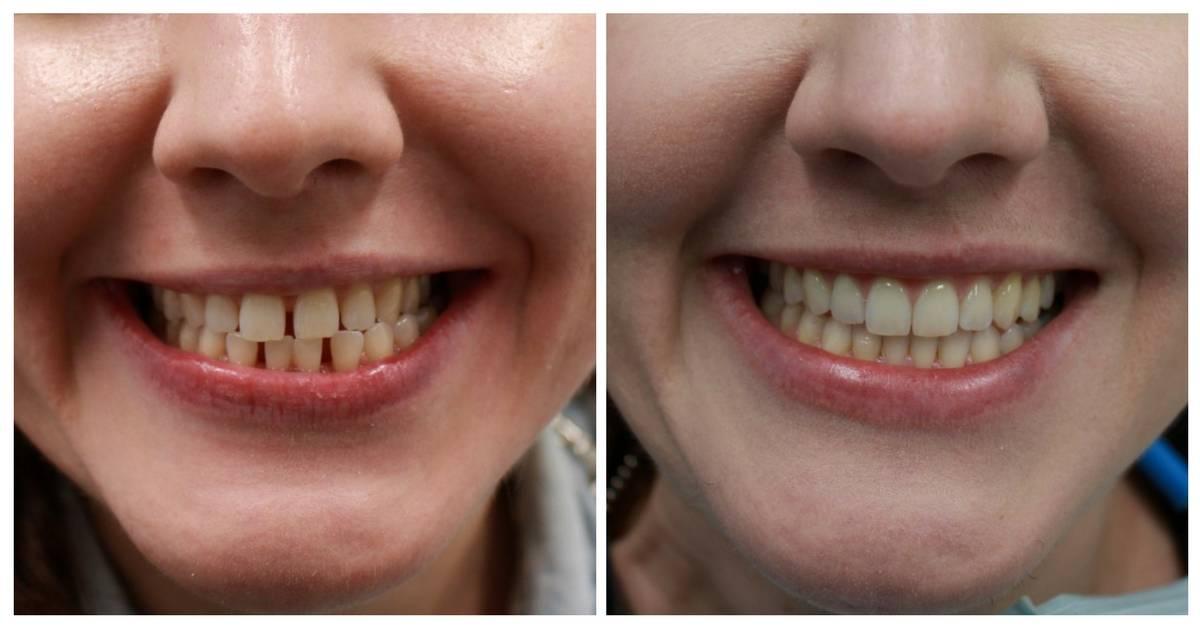Выравнивание зубов элайнерами отзывы