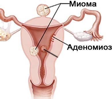 Лейомиома матки