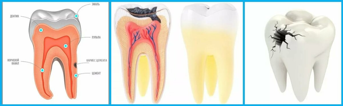Может ли быть температура на зубы. может ли быть температура от зубной боли у взрослых и детей: симптомы и лечение