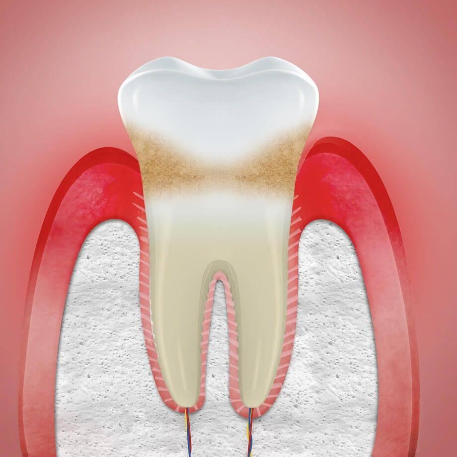Что можно сделать в домашних условиях, если воспалилась десна под коронкой, а посетить стоматолога нет возможности