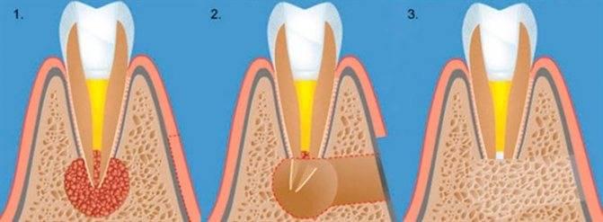 Чем опасна киста на зубе и как её вылечить?