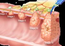 Стадии рака: общие сведения, классификация, прогноз