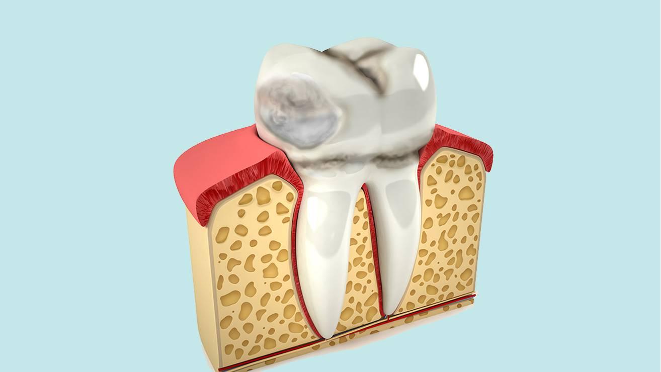 Почему возникает эрозия на эмали зубов