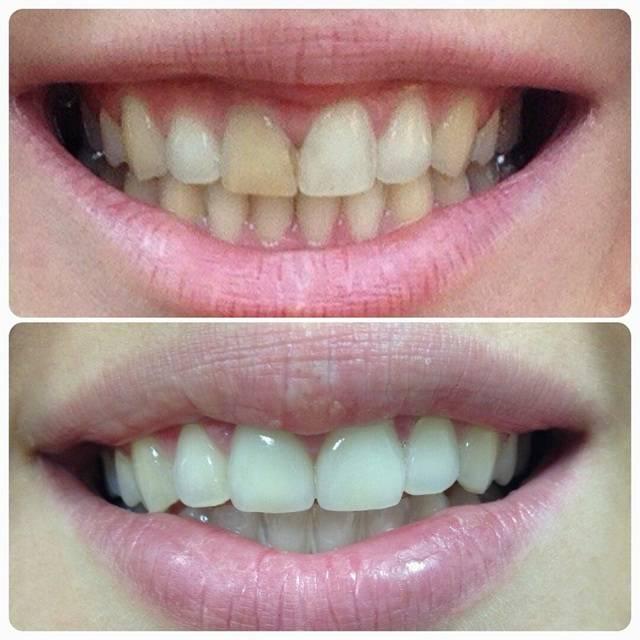 Застревает пища между зубом и коронкой