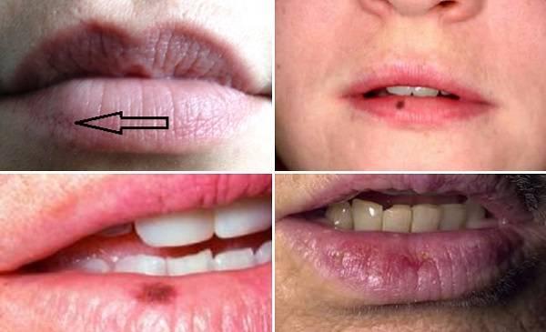 Пигментные пятна на губах— виды и как их лечить