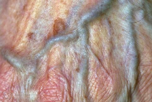 Почему появляется белый налет на половых губах и как его лечить