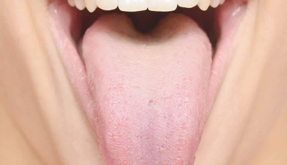 Отпечатки зубов на языке по бокам: причины и признаки какого заболевания?