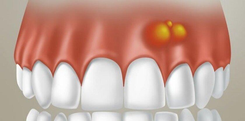 Экзостоз на десне после удаления зуба — что это такое, фото, причины и лечение