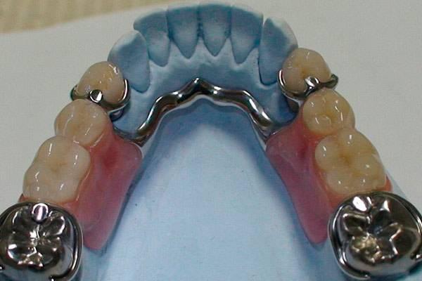 Какие съемные протезы лучше на верхнюю челюсть?