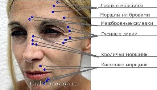 Об инъекциях ботулотоксина, как о средстве против морщин