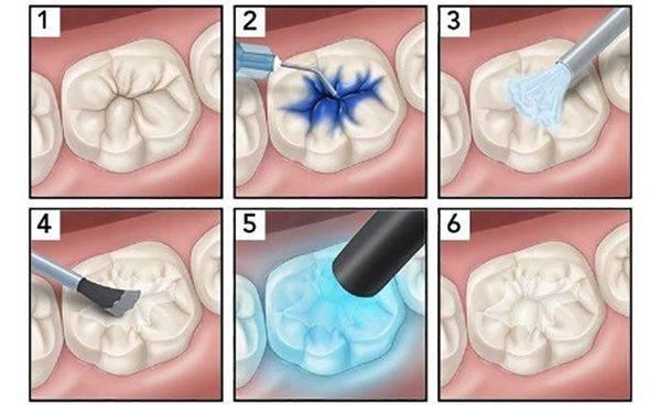 Герметизация фиссур зубов у детей и взрослых: что это, за и против