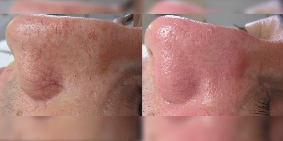 Удаление капилляров на лице: лазер или ipl?