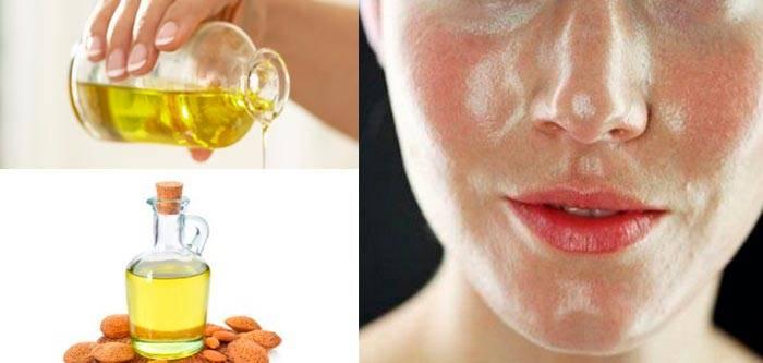 Применение масла чайного дерева для ухода за лицом