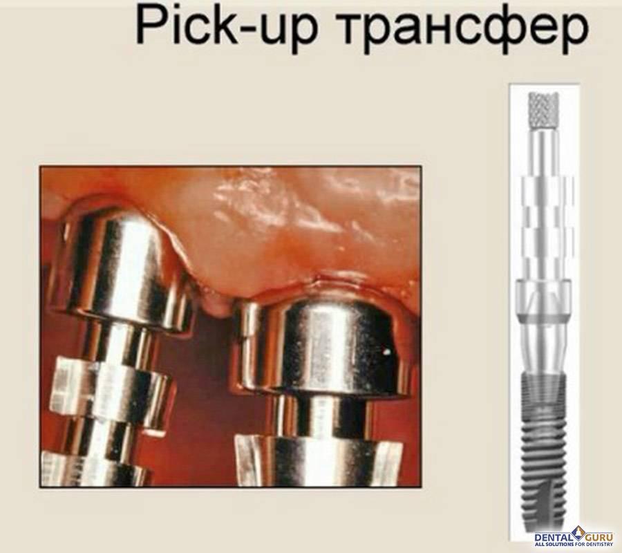 Виды зубных имплантов какие лучше и цены