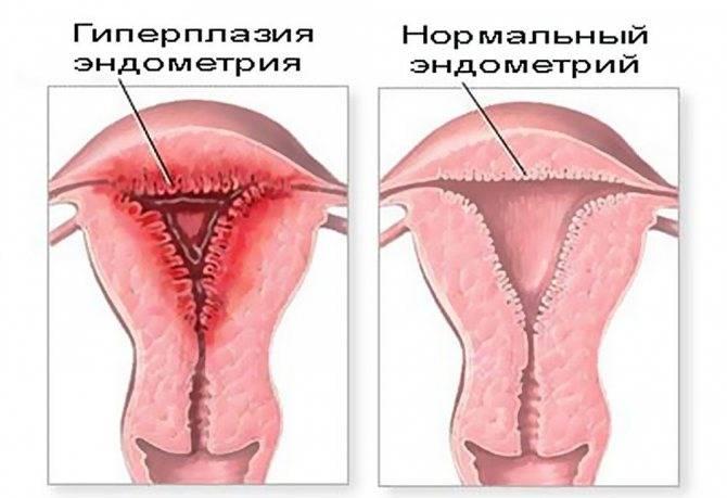 Утолщение матки. почему происходит локальное утолщение миометрия