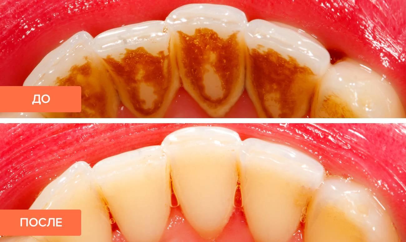 Чем отличается чистка зубов от отбеливания?