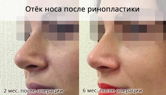 Отеки после пластики носа. когда спадет отек после ринопластики?