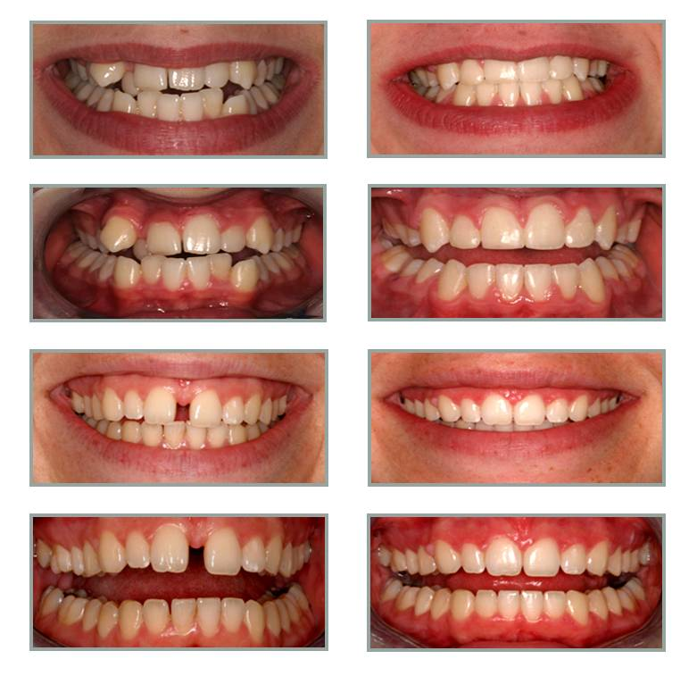 Частичная брекет-система — современное исправление зубных дефектов