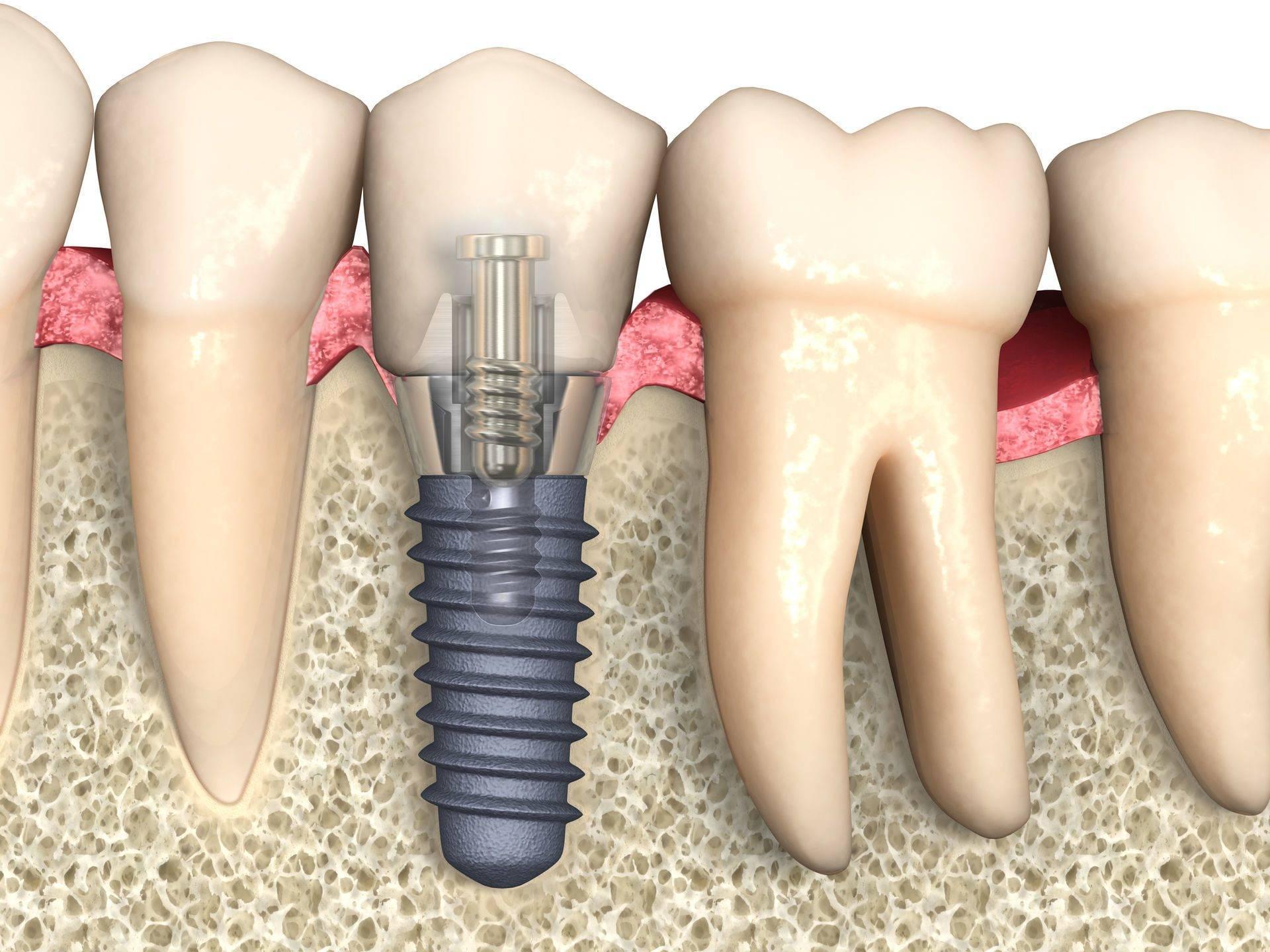 Имплантация зубов - осложнения, возникающие после имплантации зубов