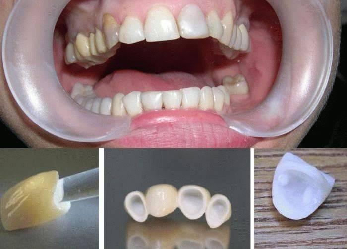 Слепок зубов в москве: цены, отзывы и адреса